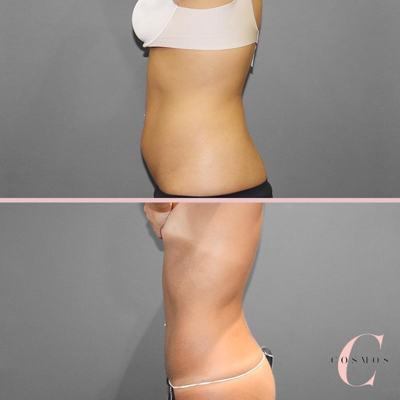 vaser liposuction sydney